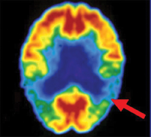What to know about MRI scans