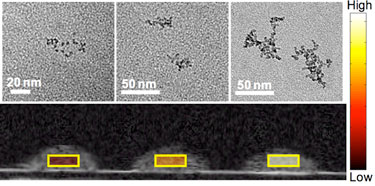 Contrast agent: superparamagnetic iron-oxide nanoparticles