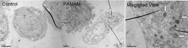 PAMAM dendrimer-induced autophagosomes accumulation in hepatocellular carcinoma cells.