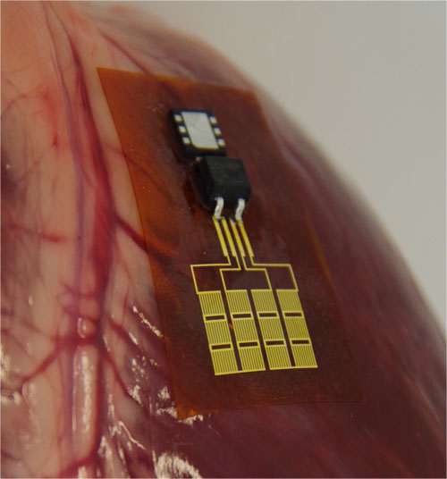 Thin-film generator harvests energy from a beating heart ...