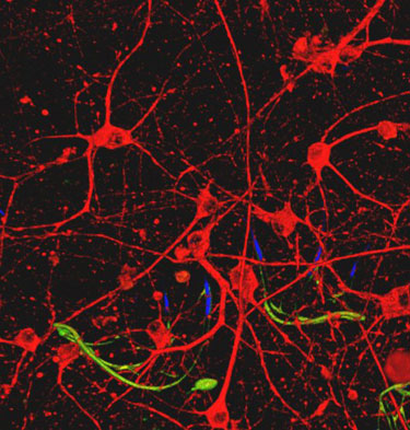 Sensors and neurons in the same tissue