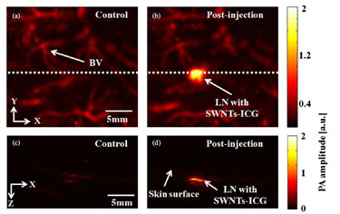 <i>In vivo</i> photoacoustic mapping of sentinel lymph nodes in rats.