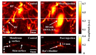 Photoacoustic mapping of bladders