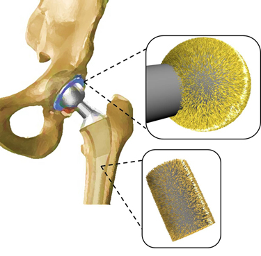 Hip implant coating