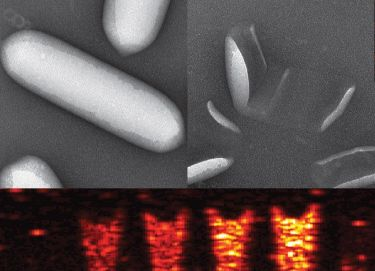Microbe gas vesicles for ultrasound imaging