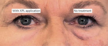 Applying the elastic second skin to the under-eye area