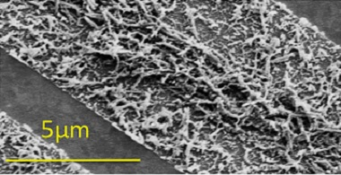 SEM images of TMV nanorods in microchannels. In a long (1 cm) channel, high fluid velocities near the channel inlet concentrated the TMV nanorods in the centre. At the end of the same channel, very low fluid velocities allowed capillary forces to dominate, concentrating the particles at the sides. In shorter, smaller channels (2 mm long, 4 μm wide, 7 μm deep), the TMV nanorods were distributed more evenly.