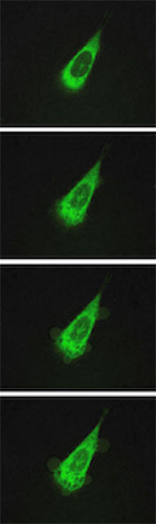 A human prostate cell under attack by motorized molecules