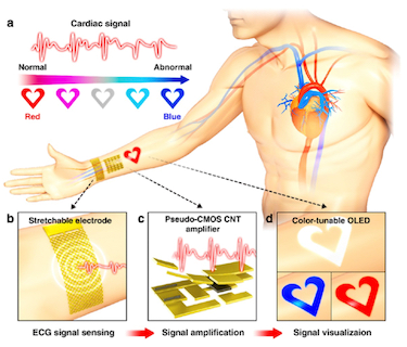 The real-time wearable cardiac-monitor