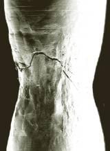 Preventing cracks