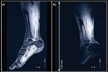 MRI scan of human leg