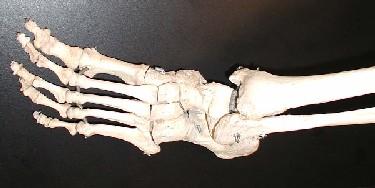 Raman spectroscopy sees inside bones
