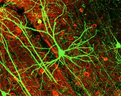Neurons in a mouse's brain: Josephson junctions could help us understand how such networks work