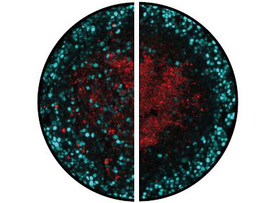 Microscope images showing dividing and dying tumour cells