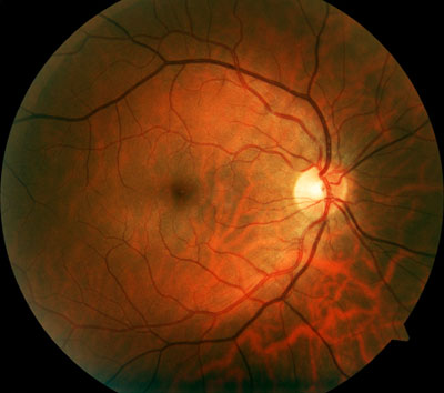 Retinal photograph of a human eye