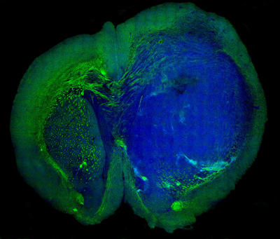 Stimulated Raman-scattering microscopy image of a brain tumour